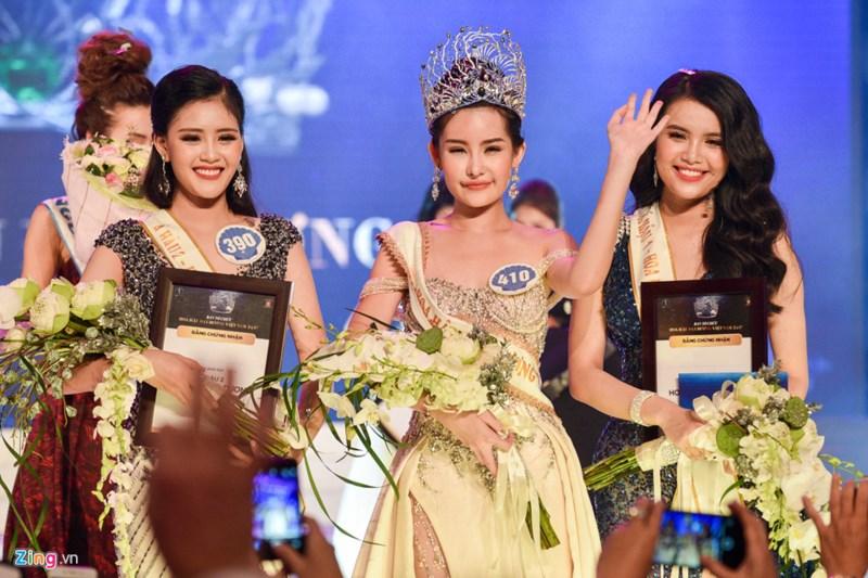 Hoa hậu Đại dương vừa đăng quang thừa nhận từng có phẫu thuật thẩm mỹ. Ảnh: Zing.vn